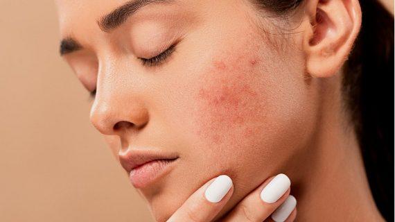 Skin care e Cannabis, un naturale connubio per la salute della pelle